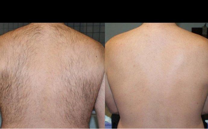 BaKblade Back Hair Shaver – Gorilla Killa