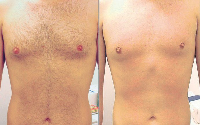 Bikini, back, Body, chest and nipples laser hair removal for men