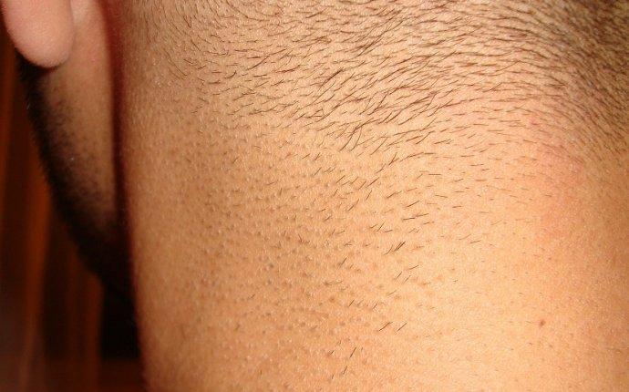 Doctor Vignjevic | Laser Hair Removal