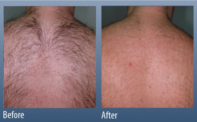 Hair Removal - Main Line for Laser Surgery in Ardmore, PA