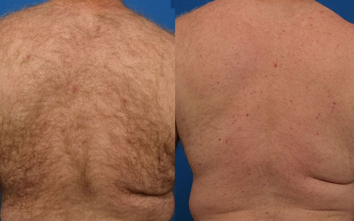 Hair Removal — Plastic Surgery Mobile Alabama, Plastic Surgeon