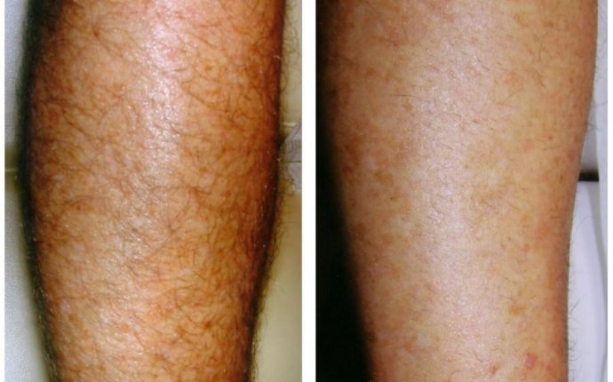 How Many Laser Hair Removal Treatments For Legs | Hair Super Pesis