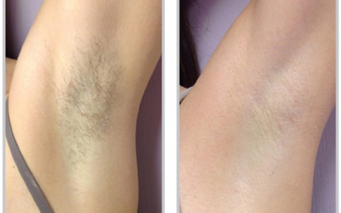 Laser Hair Removal Raleigh NC | Synergy Spa Raleigh, NC