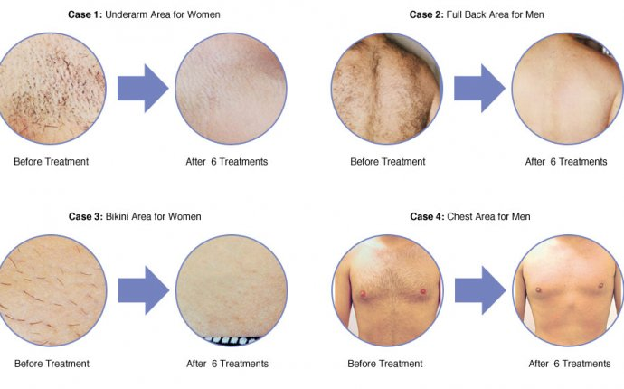 Laser hair removal reviews and results at Therapie Clinic