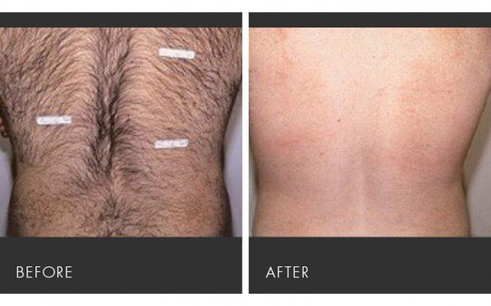 Laser Hair Removal - Slim Body & Spa