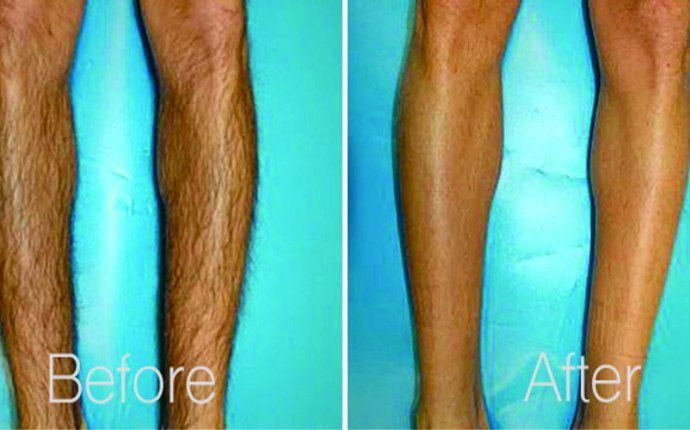 Leg Laser Hair Removal Miami, FL - Avalon Medical Spa