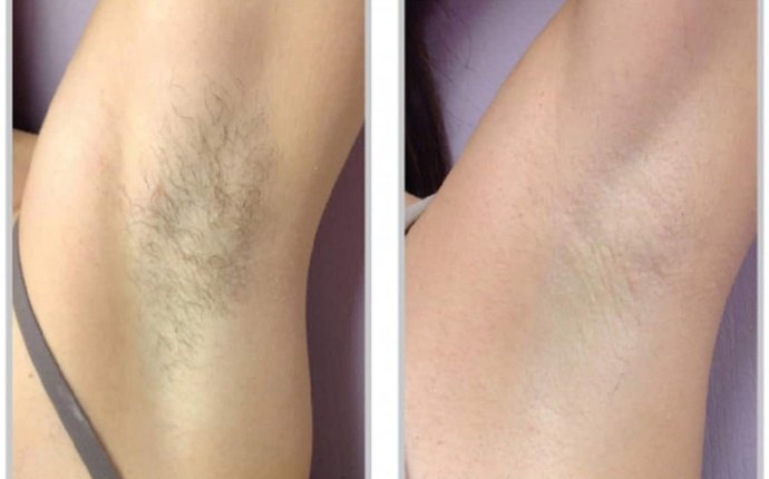 The Science of Laser Hair Removal: How it Works