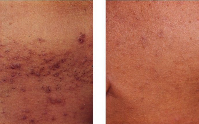 Will Laser Remove Ingrown Hair