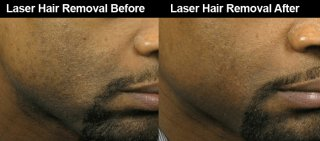 Atlanta Laser Hair Removal Dark Skin Men