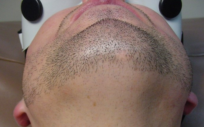 Beard Laser Hair Removal
