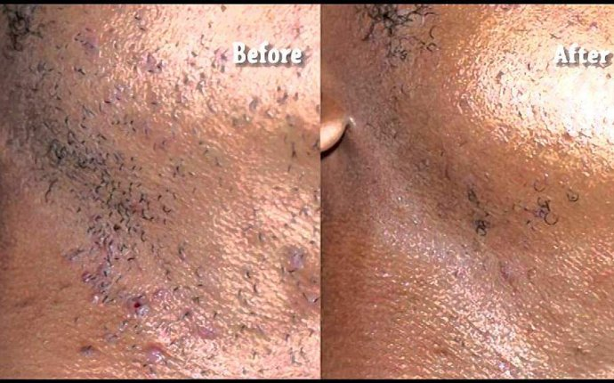 Effectiveness of Laser Hair Removal