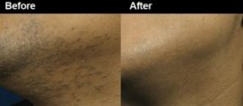 Facial Laser Hair Removal Atlanta GA