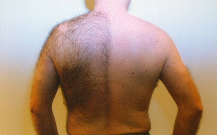 Back Hair Removal Mens